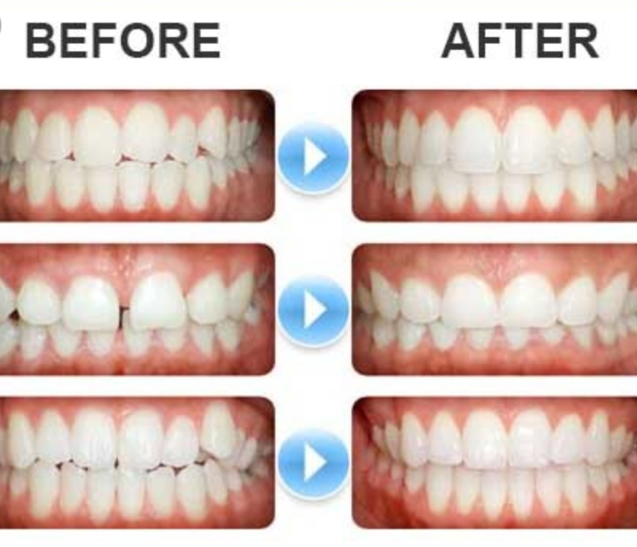 clearcorrect clear tooth alignment